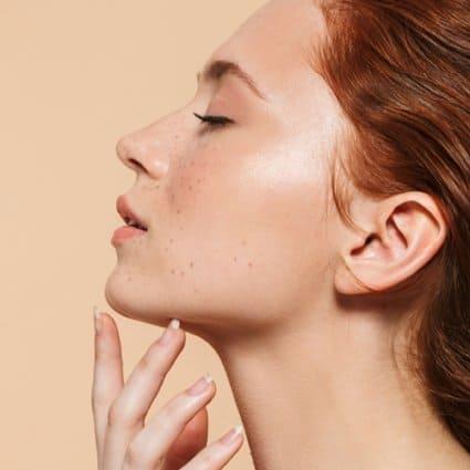 Jeune femme à la chevelure rousse posant ses doigts sous son menton.